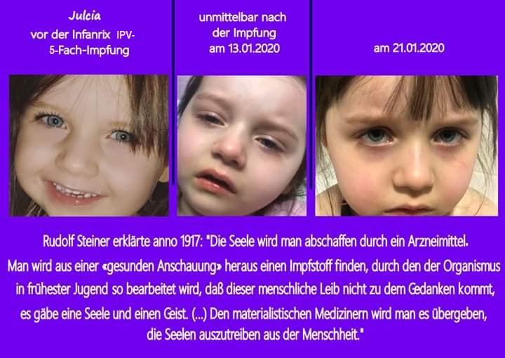 Impfschaden 5-fach